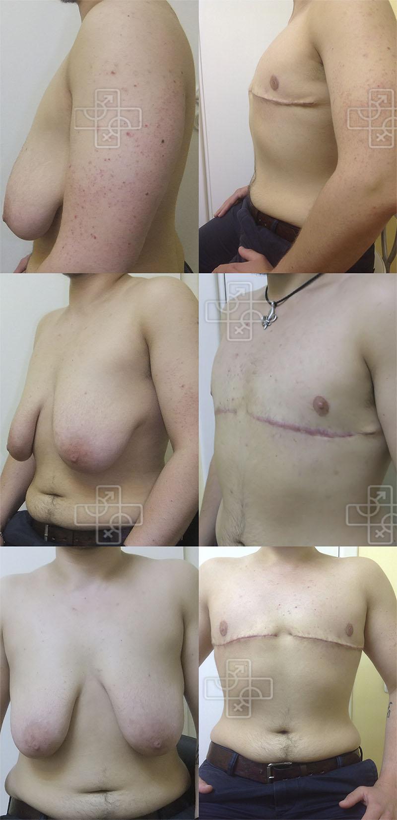 Транссексуалы фтм подготовка к фаллопластика