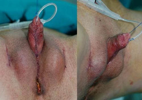 Как выглядят половые органы транссексуала после операции фото 405-547