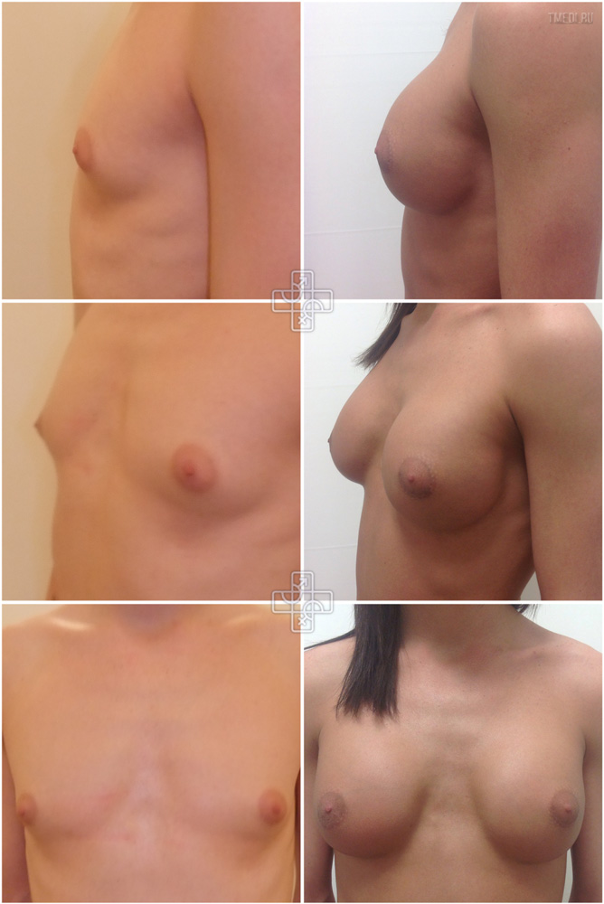 Рост груди транссексуал