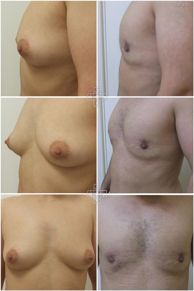 rezultati-estrogenoterapii-u-transseksualov
